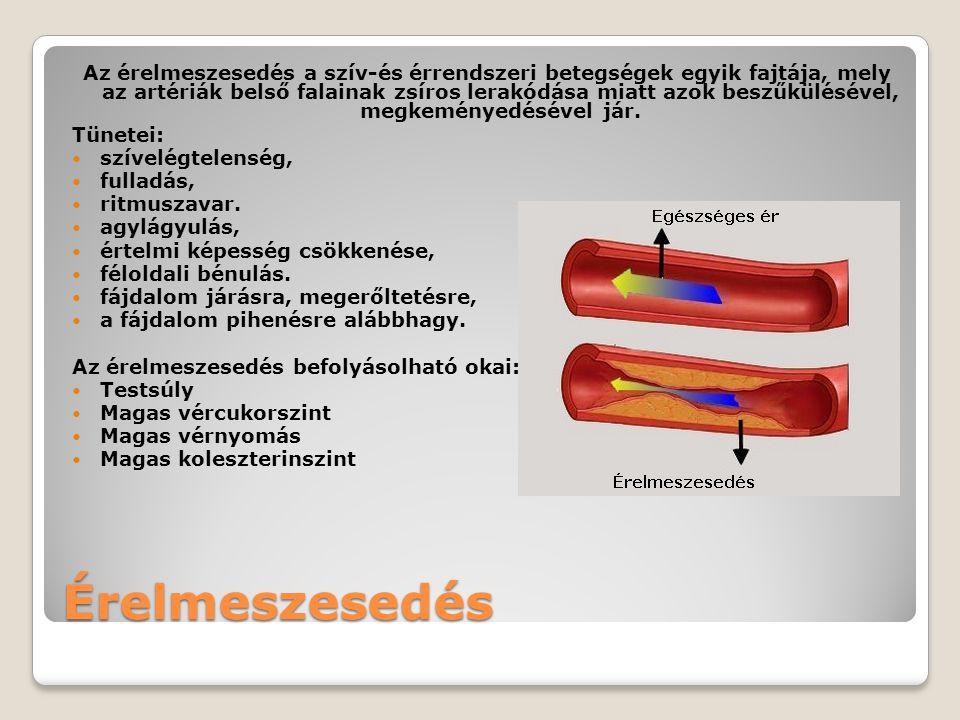 magas vérnyomás kódok az ICB-10 szerint