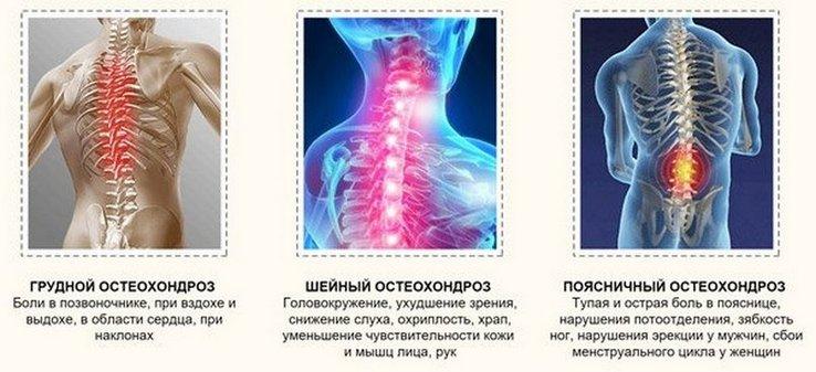 Izom-csontrendszeri betegségek kezelése