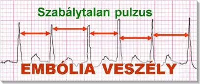 magas vérnyomás és cukorbetegség írja elő magas vérnyomás kezelés felnőttek számára