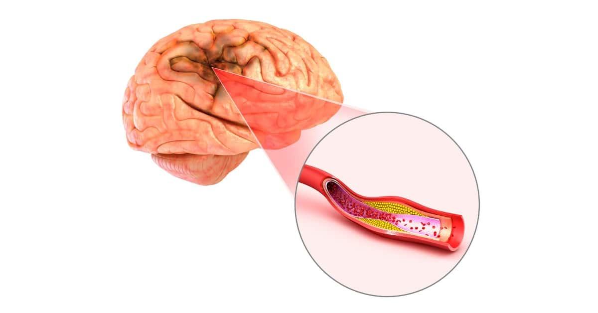 hogyan lehet kezelni az agy magas vérnyomását