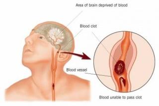 magas vérnyomás diuretikumok kezelése hogyan lehet kezelni az agy magas vérnyomását