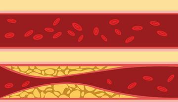 magas vérnyomás a vérnyomás éles esése