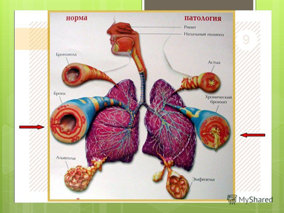 magas vérnyomás auskultációja