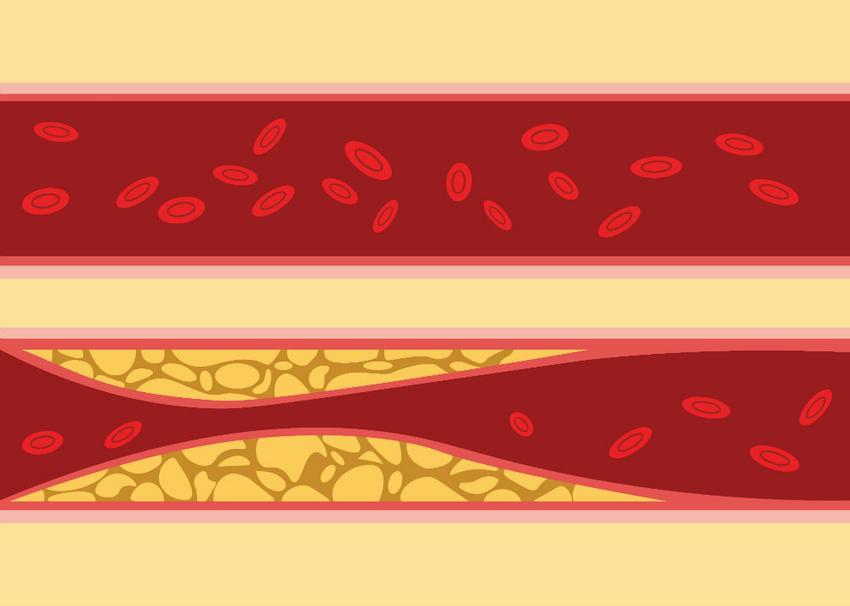 magas vérnyomás a cukorbetegség hátterében hipertónia kockázattal