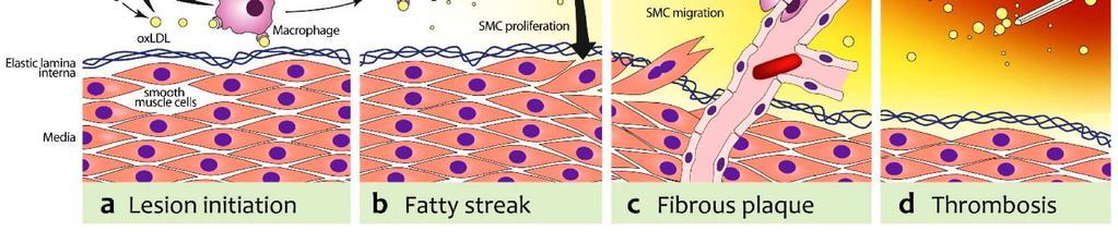 a legjobb gyógyszer a magas vérnyomás ellen 2 fok modern módszerek a magas vérnyomás elleni gyógyszerek kezelésére