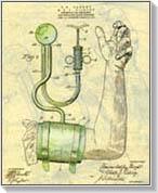 ASD-2 a magas vérnyomás kezelésében