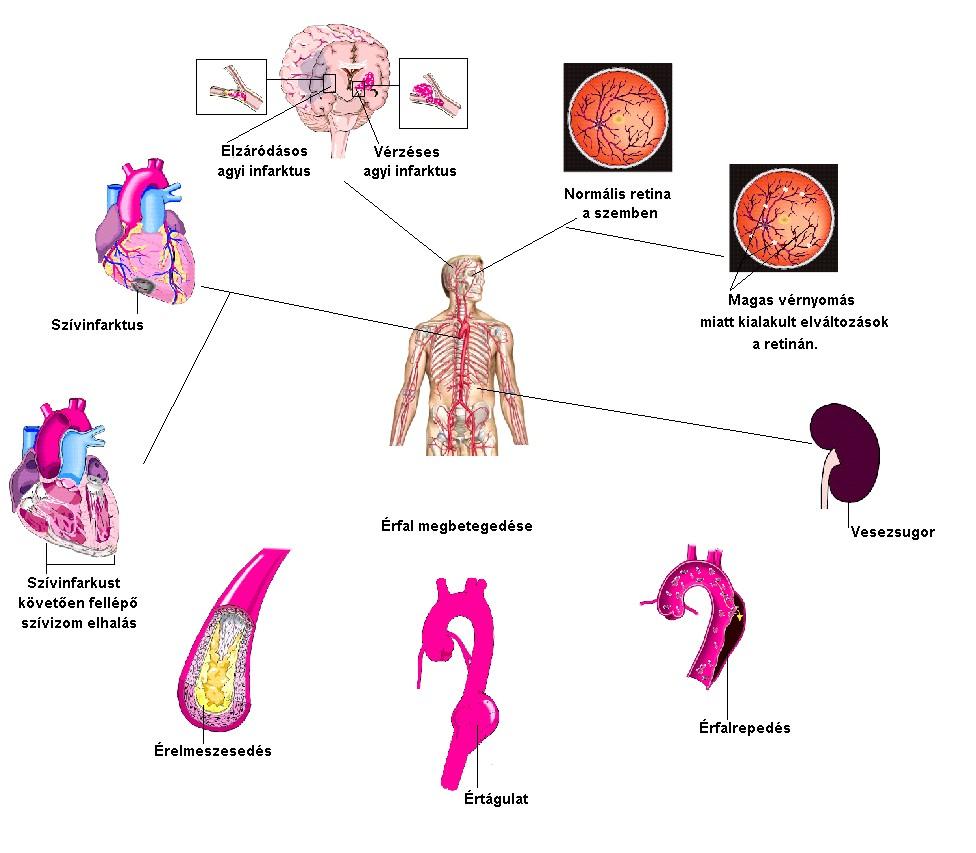 magas vérnyomás etiológiája tea recept hipertónia esetén