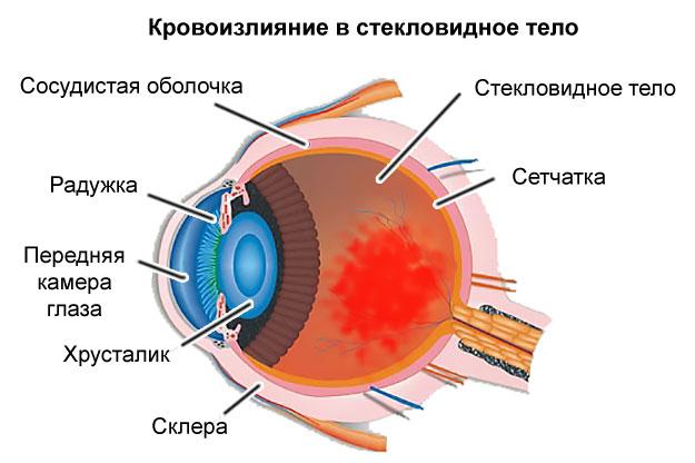 Fekete pöttyök a szemében - Disztónia November