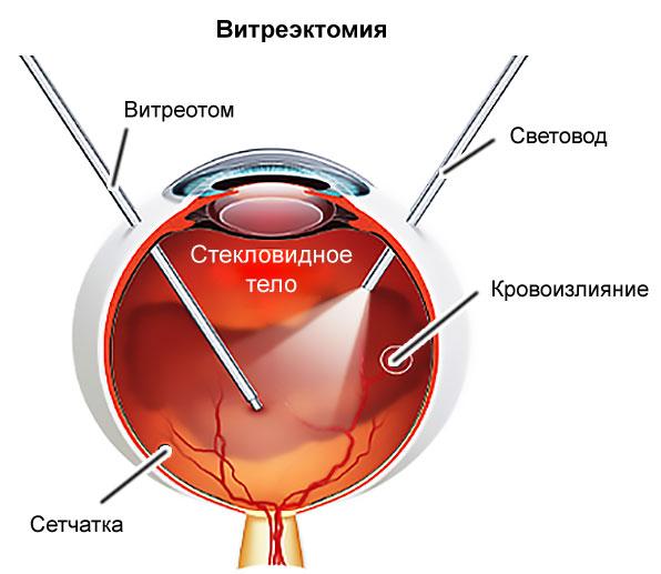 hipertóniával járó szemváltozások