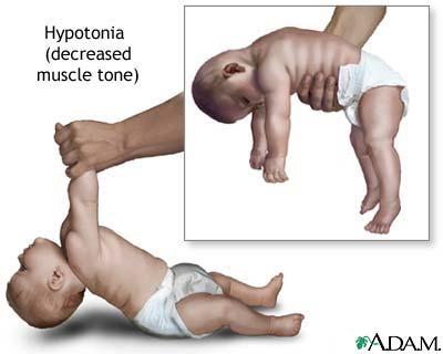 stádiumú magas vérnyomás gyógyítható nyomás hipertónia és hipotenzió miből