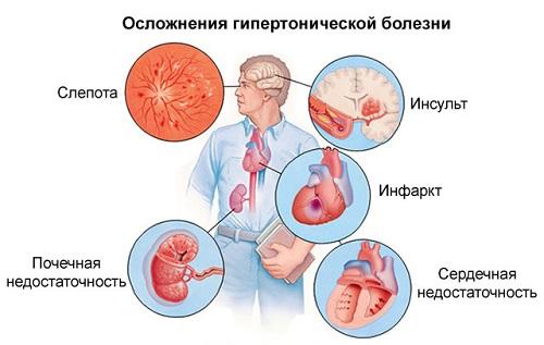 a magas vérnyomást tabletták nélkül hódítsa meg