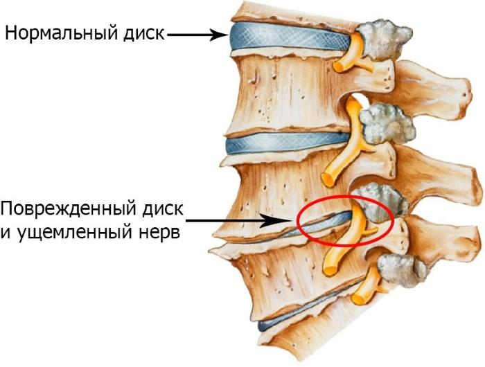 magas vérnyomás fájdalom a bal vállban hipertónia típusú kezelések