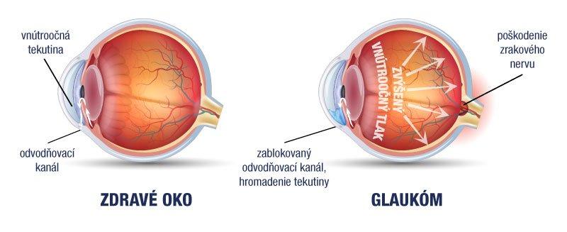 magas vérnyomás műtét glaukóma