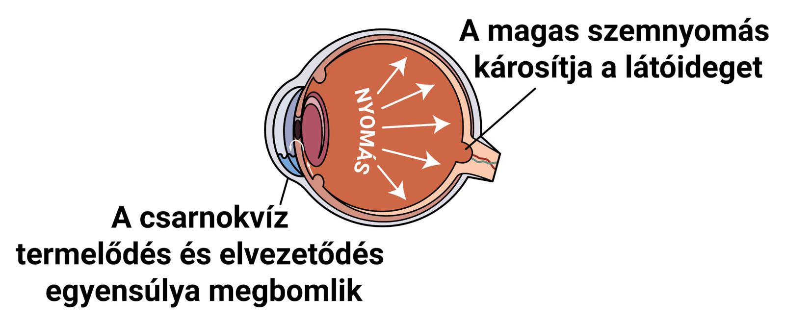 magas vérnyomás és glaukóma