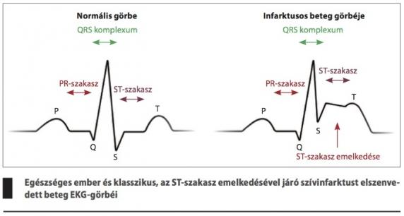 magas vérnyomású szívinfarktus