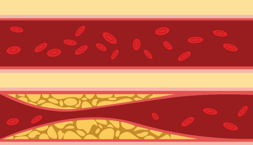 az allergia magas vérnyomást okoz