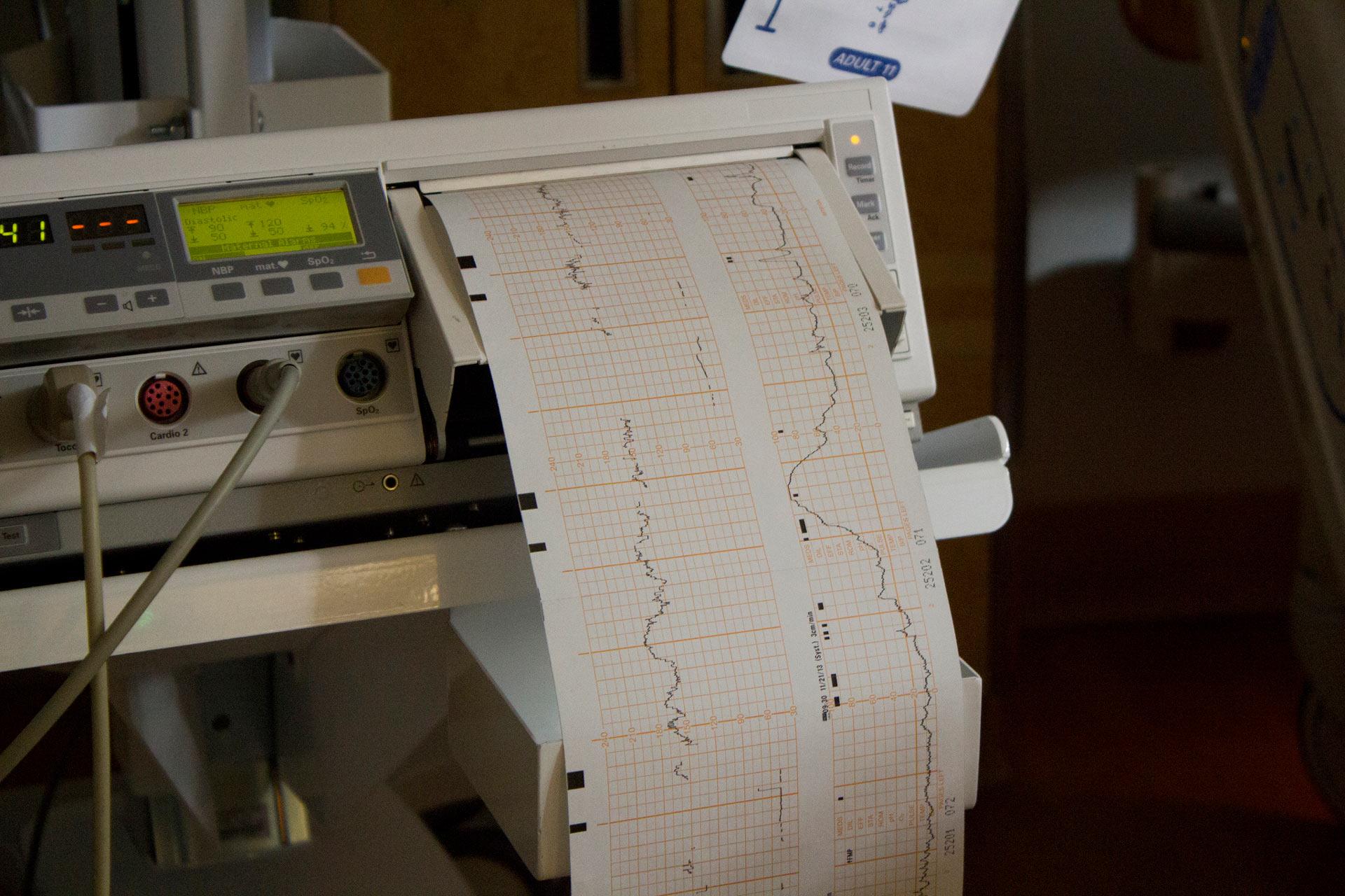 magas vérnyomás casalliclari amit nem és mit lehet enni magas vérnyomás esetén