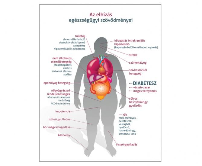 Epekő tünetei és kezelése - HáziPatika