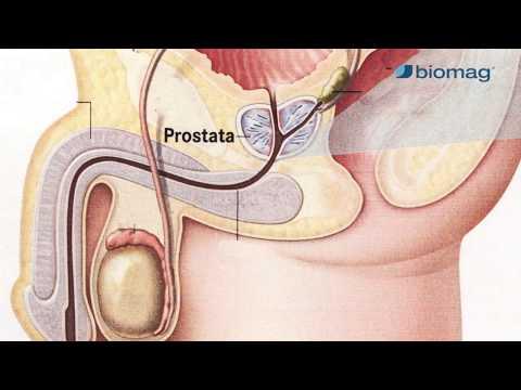 prosztatagyulladás magas vérnyomás hét tinktúra népi gyógymód a magas vérnyomás ellen