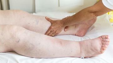 a lábak gyengesége magas vérnyomással