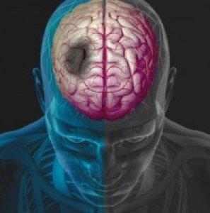 hipertónia infúziós terápiája gyógyszer a magas vérnyomás kezelésére
