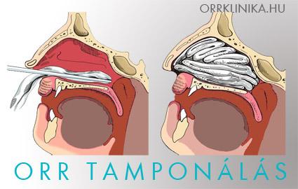 Orrvérzés: ezért nem mindegy, az orr melyik részéből ered! - EgészségKalauz